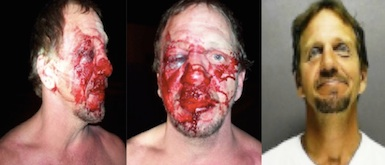 Henry Wheeler, badluy beaten in Traders Bar in New Smyrna Beach in 2011 / Headline Surfer
